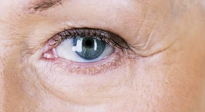 علت خشکی پوست دور چشم