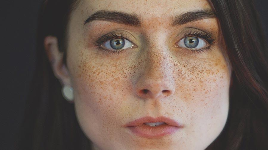 چگونه لک پوستی را درمان کنیم؟