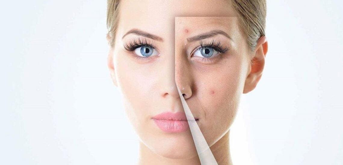 قاعدگی چه تاثیری در پوست دارد؟