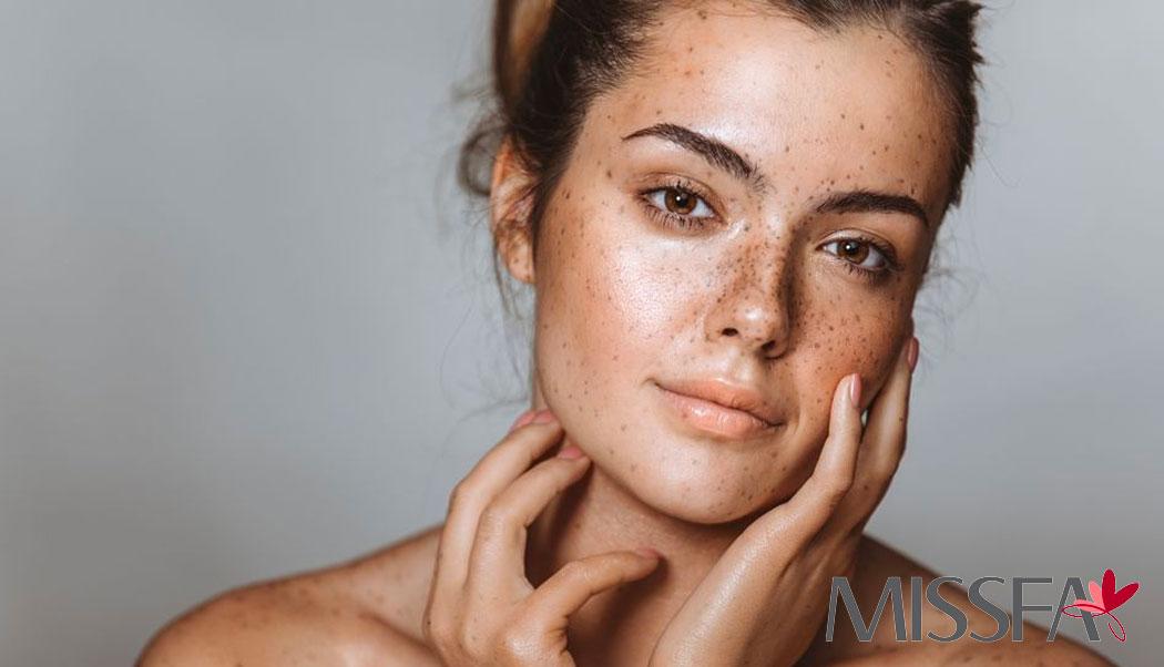 دلیل ایجاد لکه های پوستی و تشخیص و درمان آن
