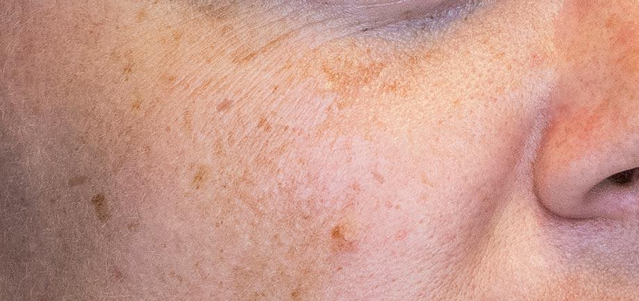 راهکار درمان لکه پوستی